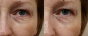 После операции по замене хрусталика мешок под глазом как избавиться?