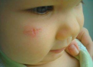 Царапина у новорождённого