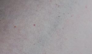 Мелкие красные точки на теле