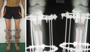 Обработка ноги в аппарате Илизарова