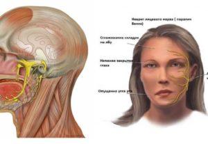 Болит ухо и онемела часть лица