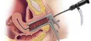 Задержка после гистероскопии