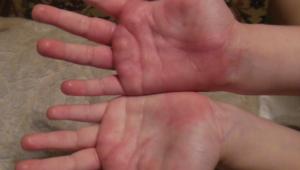 Опухла и чешется рука
