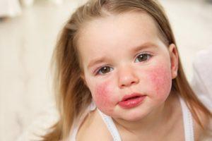 Аллергия у подростка