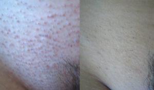 Чешется лобок после бритья