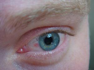 Дискомфорт в глазу, прозрачная плёнка во внутреннем углу глаза