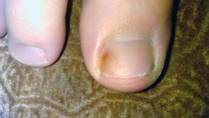 Коричневое пятно под ногтем