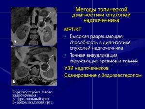 Диагностика надпочечников