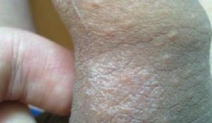 Сыпь на крайней плоти
