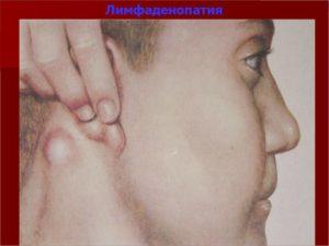ВИЧ инфекция, частая ангина, припухли лимфоузлы