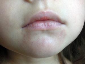 Синюшные пятна вокруг рта