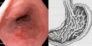 Очаговая гиперплазия пищевода, стоит ли бояться
