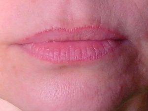 Зуд, покраснение лица, стянутости вокруг губ