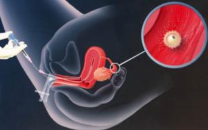 Бактериоспермия. Есть ли шанс на здоровую беременность?
