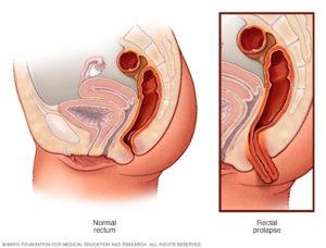 Выпадение прямой кишки после родов