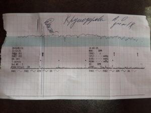 Преждевременное старение плаценты, расшифровка КТГ