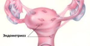 Планирование беременности с одной маточной трубой