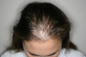 Прием эутирокса и выпадение волос сильное