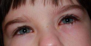 У ребенка от насморка гноится глаз