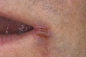 Жжение, ззуд пол губ, влагалища, слизистая вся рыхлая, сосуды иньецированы