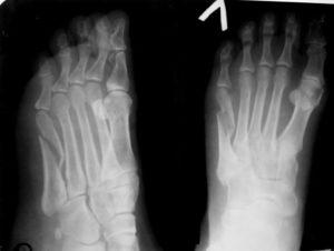 Перелом 2 плюсневой кости ноги со смещением