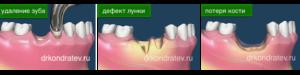 Оголение челюстной кости, удаление зуба