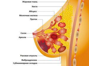 Новообразование околососковой области правой молочной железы