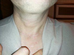 Образование после удаления щитовидной железы