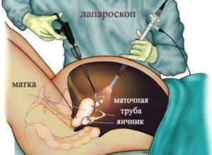Стимуляция клитора после удаления кисты яичника
