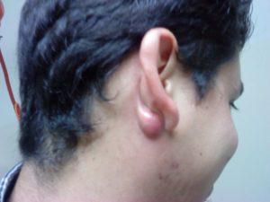 Синяя Шишка за ухом,