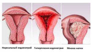 Эндометрий не растет