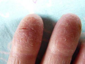 Огрубела кожа на пальце и шелушится