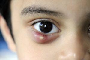 Эффективное лечение халязиона у ребёнка