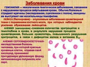 Воспаление крови у ребенка