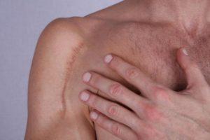 Кожный зуд после операций