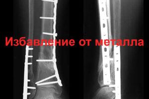 После остеосинтеза можно ли сразу ходить?