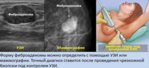 Удаление фиброаденом молочной железы без предварительной биопсии?