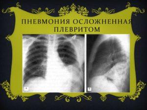 Пневмония плеврит