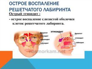 Как лечить нарушение пневматазации клеток решетчатого лабиринта?