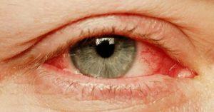 Краснота глаз не проходит