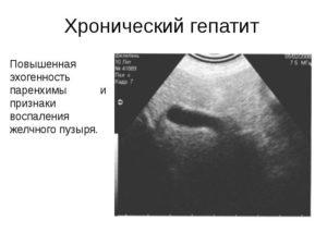 Стенки желчных протоков повышенной эхогенности