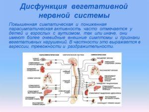 Дисфункция вегетативной нервной системы