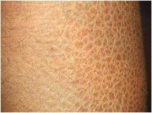 Сильное шелушение кожи по всему телу, особенно после душа
