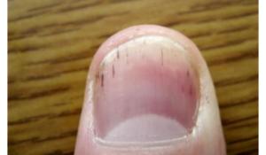 Чёрные точки на ногтях рук