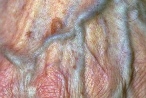 Опухлость рядом с половыми губами