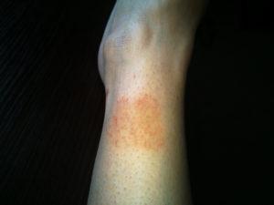 Красные пятна на ноге ниже колена