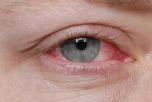 Ощущения инородного тела в глазу