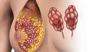 Недифференцированный рак молочной железы