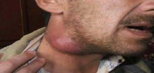 Увеличение заднешейного лимфоузла8