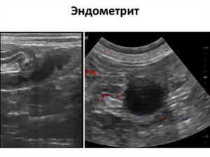 Хронический эндометрит и кальцинаты на повторном узи